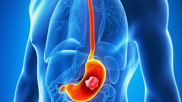 {Taj Pharmaceuticals} Stomach cancer symptoms, diagnosis and treatment