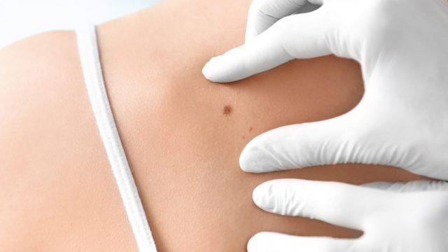 What to know about melanoma